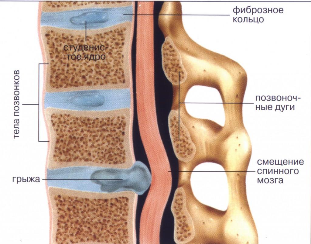 Причины появления болей в спине